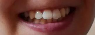 teeths.png